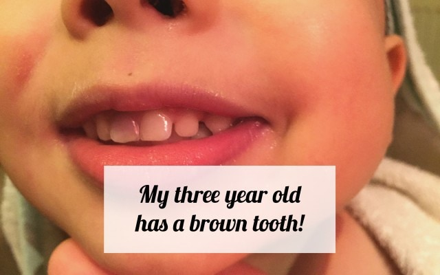 My three year old has a brown tooth!