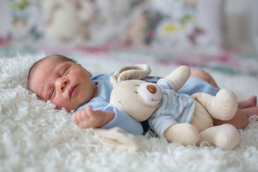 baby-with-eczema